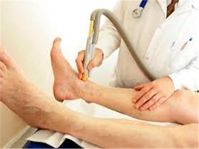 الدالى: عمليات دوالي الساقين تتم بدون شق وبدون جراحة
