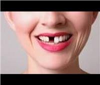 مفسر الأحلام يوضح رؤية «الأسنان» في المنام