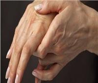 تعرف علىأعراض الإصابة بـ«تصلب الشرايين»