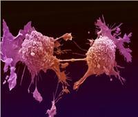 طول القامة قد يعرض لزيادة مخاطر الإصابة بالسرطان