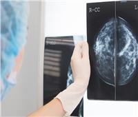 تقنية مذهلة تساعد في تشخيص «سرطان الثدي»