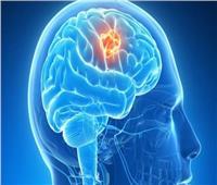 تقنية جديدة لإزالة الخلايا السرطانية من الدماغ