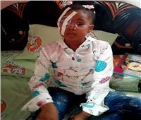 «ملك» طفلة فقدت عينها بمدرسة في الإسماعيلية وعجز الأطباء عن علاجها