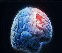 علماء صينيون يخططون لرسم خريطة ثلاثية الأبعاد للدماغ البشري