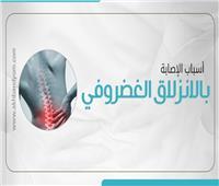 انفوجراف| أسباب الإصابة بالانزلاق الغضروفي.. تعرف عليها