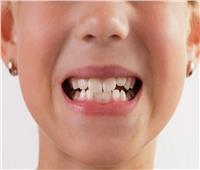احذر.. العادات السيئة التي تضر بأسنان الأطفال