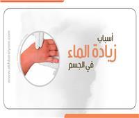 إنفوجراف | تعرف علىأسباب «زيادة الماء» في الجسم