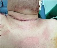 فريق طبي ينجح في استئصال ورم سرطاني بثدي رجل بمستشفى الغردقة