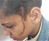 أحدهم أصيب بـ30 غرزة.. خناقة أطفال بـ«موس حلاقة» في مدرسة بالمرج