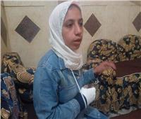 مدرس يكسر ذراع طالبة في المنيا