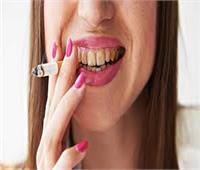 10 مشاكل تواجهها الأسنان بسبب التدخين