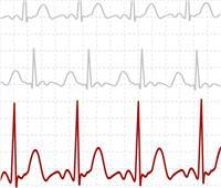 تطوير تقنية تخطيط كهربائية القلب باستخدام إشارات من الأذن واليد