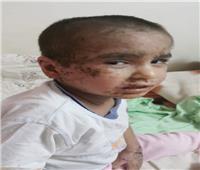 القضاء الإداري يُلزم وزير الصحة بـ«زرع نخاع» لطفل البحيرة