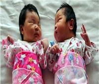 امرأة صينية تنجب توأما من أبوين مختلفين