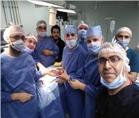 استئصال ورم من رقبة مريض بـ«طب المنوفية»