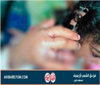 صور| بعد ضحية بالوعة المدرسة.. طفلة مهددة ببتر أصابعها في الغربية