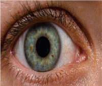 فيديو| «طبيب عيون» يوجه 5 نصائح للعمال لحماية نظرهم