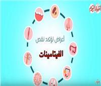 فيديو| تعرف على أعراض نقص الفيتامينات في الجسم