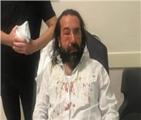 فيديو وصور| على نهج الإخوان.. أنصار أردوغان يعتدون على رجل أعمال معارض