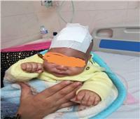 استئصال كيس مائي على المخ لرضيع في مستشفى المنصورة