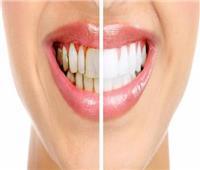 استشاري يحذر من تكون طبقات الجير على الأسنان