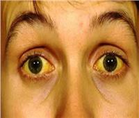 احذر.. تغيير لون بياض العين للأصفر يشير إلى مرض خطير