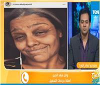 استشاري جراحة تجميل يفجر مفاجأة عن «Face App»