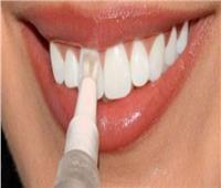 استشاري: تجميل الأسنان يعالج التسوس والتشوه والكسور والاصفرار