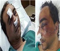 فيديو| المصري المعتدى عليه بالكويت: «حكومة بلدي رفعت راسي»