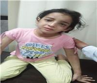 تعذيب طفلة على يد زوجة والدها بدمياط