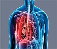 دراسة: ربع سكان العالم عرضة لخطر الإصابة بالسل