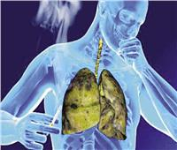 """دكتور أيمن سالم يوضح كل ما يتعلق بمرض السل """"الدرن"""".. التشخيص والعلاج"""