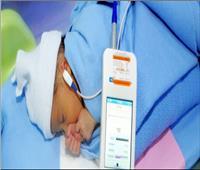 توفير 18 جهاز مسح سمعي لحديثي الولادة بشمال سيناء