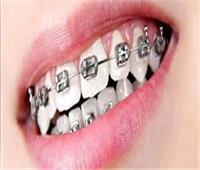 استشاري يوجه نصائح هامة للمرضى عند تركيب «تقويم الأسنان»