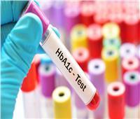 نصائح هامة حول تحليل السكر التراكمي والحالات التي لا يناسبها