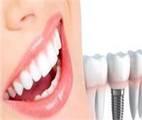 تعرفي على الفروق بين زراعة الأسنان التقليدية والفورية