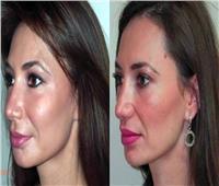 استشاري تجميل يوضح مميزات حقن الدهون لعلاج تجاعيد الوجه