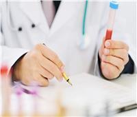 حقيقة تصدُّر مصر المركز الأول عالمياً في معدلات الإصابة بالسرطان