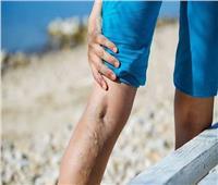 أستاذ أوعية دموية يوضح أفضل طرق لعلاج دوالي الساقين