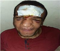 بسبب «جوافة».. مزارع يكسر أنف أحد ذوي الاحتياجات الخاصة