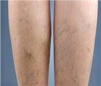 تعرف على أحدث طرق علاج «دوالي» القدمين