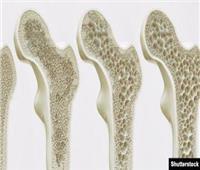 «الكافيين والتدخين» أبرزها.. 9 أسباب وراء الإصابة بهشاشة العظام