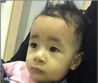 وزيرة الصحة تستجيب لـ«بوابة أخبار اليوم» بعلاج الطفل «ريان» في معهد القلب