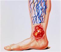 طبيب جراحة: دعامة القدم تستخدم في منع البتر