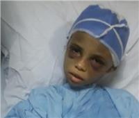 صور| وزيرة التضامن توجه برعاية «طفلة التعذيب بالشرقية»