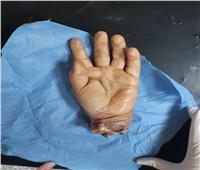 جامعة أسيوط تنجح في زرع يد شاب بعد بترها بالكامل في حادث سيارة