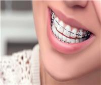 استشاري: تقويم الأسنان تقنية تجميلية تناسب جميع الأعمار