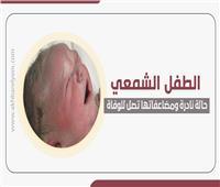 إنفوجراف | الطفل الشمعي .. حالة نادرة ومضاعفاتها تصل للوفاة