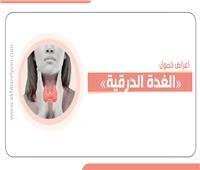 إنفوجراف| أعراض خمول «الغدة الدرقية»