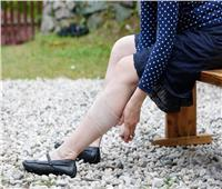 استشاري يوضح أسباب إصابة النساء بدوالي الساقين